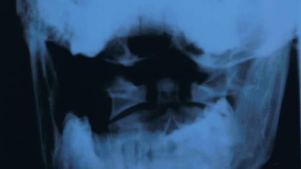 Here is the X-ray of my jaw with the huge gap on one side from the dentist removing my wisdom teeth