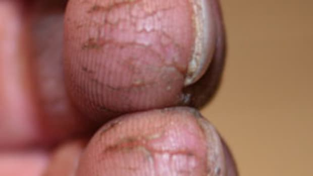 cracked-fingertips-and-how-to-treat-them