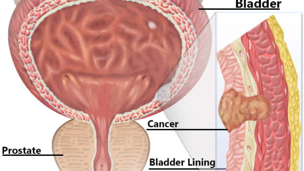 bladder-cancer-and-bcg-infection