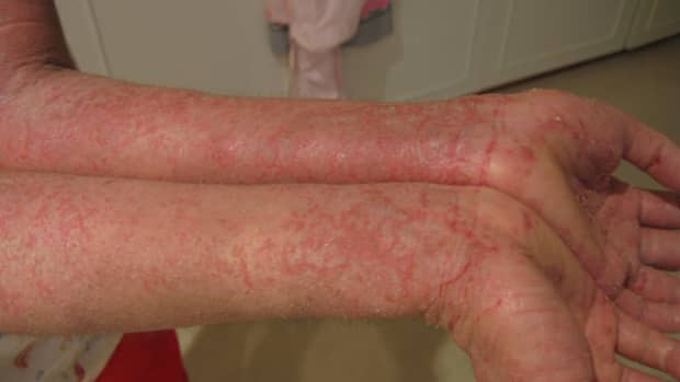 treatment-of-dyshidrotic-eczema-and-possible-causes
