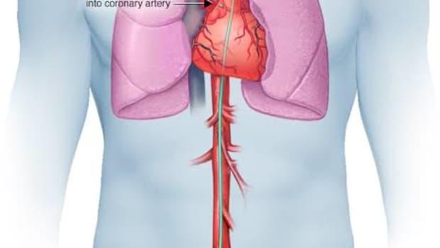 cardiac-catheter-risks