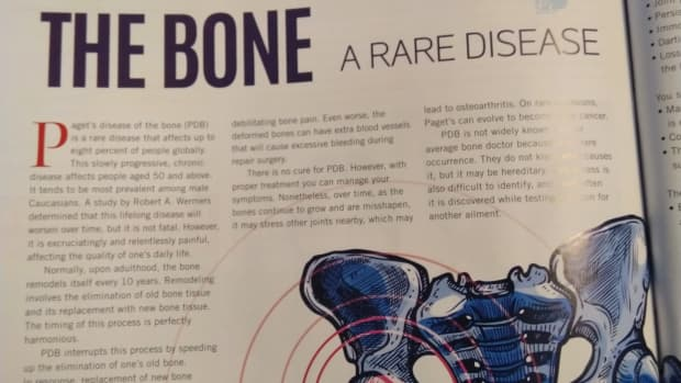 pagets-disease-of-the-bone-a-rare-disease