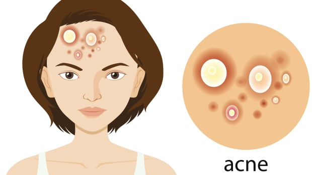 7-ways-to-treat-acne