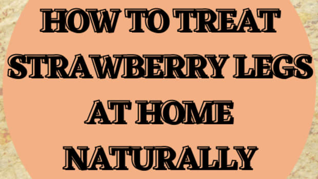 how-to-remove-strawberry-legs-naturally
