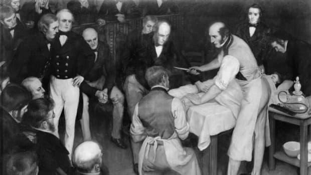 robert-liston-speedy-victorian-surgeon