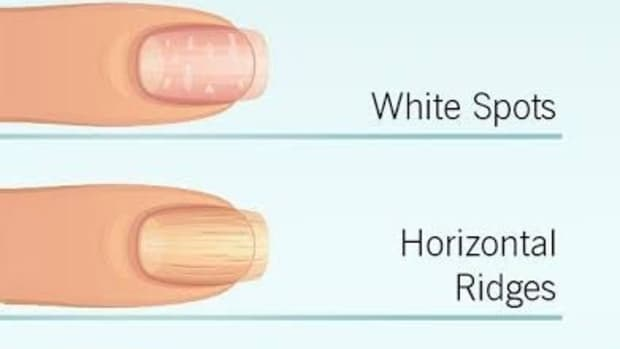 how-to-get-strong-long-nails-naturally-without-any-commercial-products
