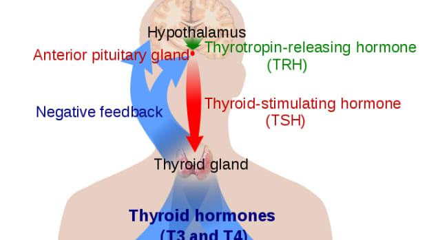 thyroid-problems-and-treatments