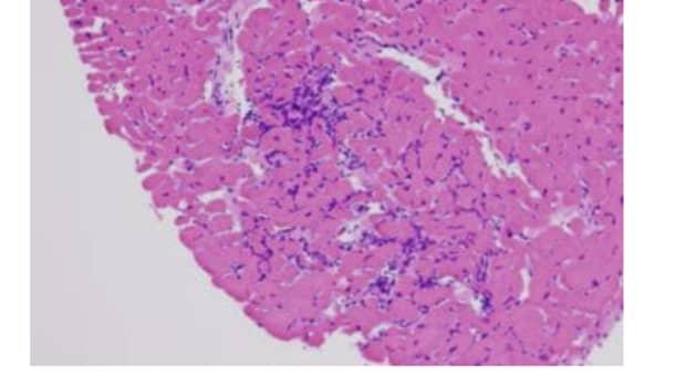 acute-myocarditis