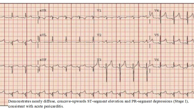 how-much-do-you-know-about-pericarditis