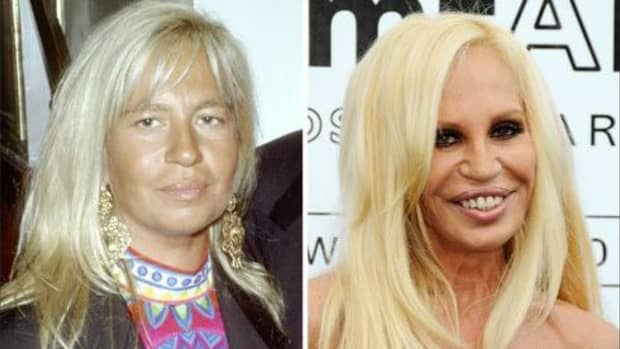 how-to-handle-plastic-surgery-gone-wrong