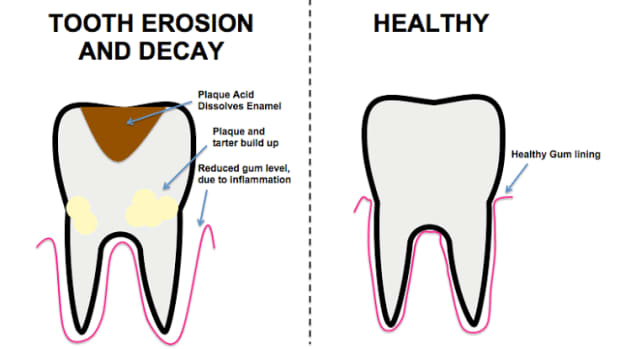 how-can-i-protect-my-teeth-from-tooth-erosion