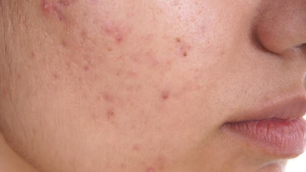 top-10-acne-causes-prevention-tips