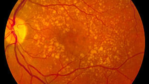 no-matter-how-old-you-are-now-is-the-time-for-eye-health