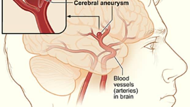 brain-aneurysm-facts