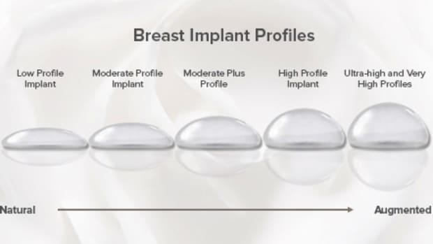 my-breast-augmentation