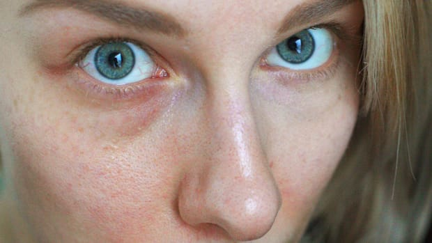 dilated-capillaries
