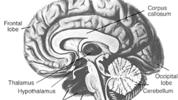 wet_brain_thiamine_diet_and_abstinence