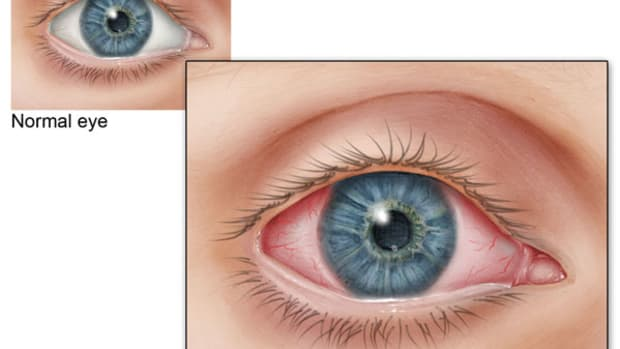 what-to-do-for-pink-eye