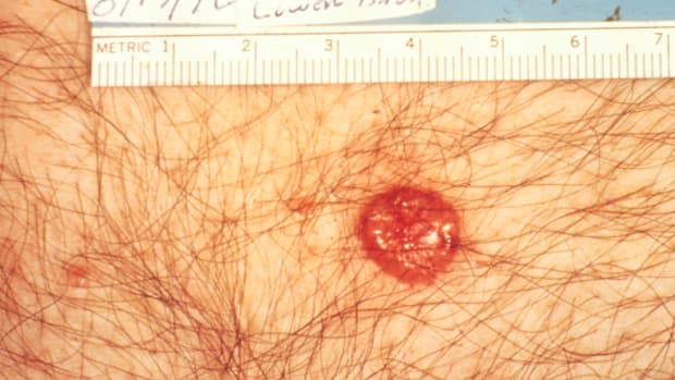 heres-your-sign-basal-cell-cancer