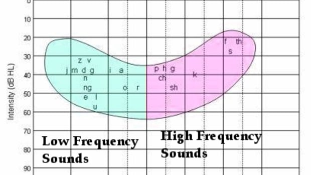 the-best-hearing-loss-simulations-understanding-audiograms-and-the-impact-of-the-speech-banana