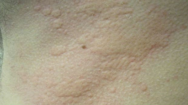chronic-hives-urticaria-can-be-symptom-of-autoimmune-disease-while-angioedema-can-be-treated