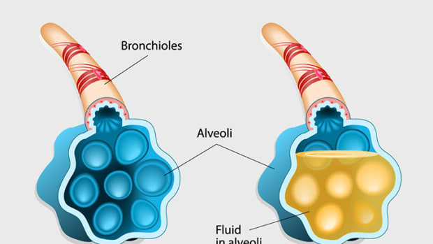 bronchitis-vs-pneumonia-home-remedies-things-to-know
