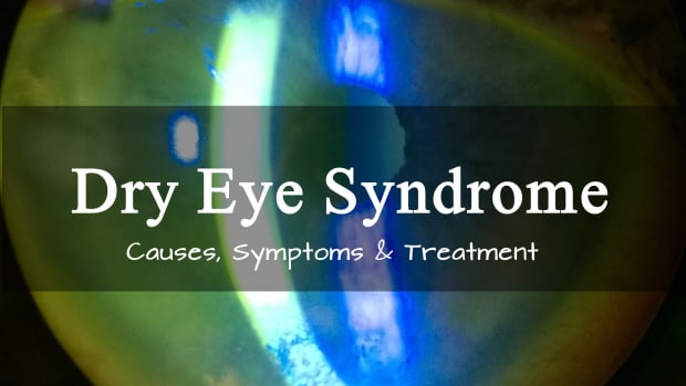 dry-eye-syndrome-symptoms-and-treatment-of-dry-eye