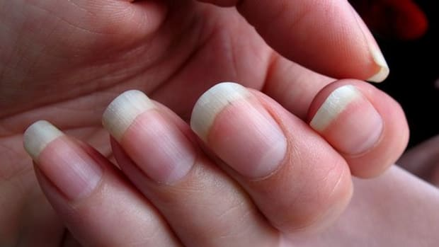 why-some-people-bite-their-nails