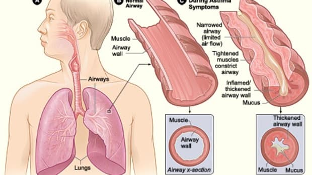 effects-of-budesonide-and-formoterol-on-asthma-and-on-the-body