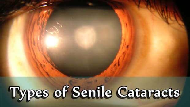 types-of-senile-cataracts