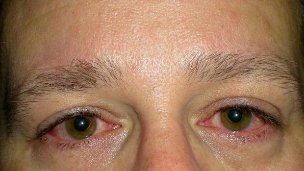 is-it-allergy-or-is-it-thyroid