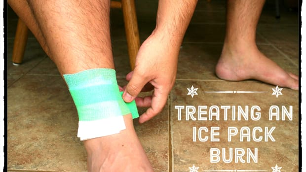 how-to-treat-a-cold-pack-burn