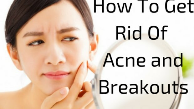 how-to-get-rid-of-acne-and-breakouts