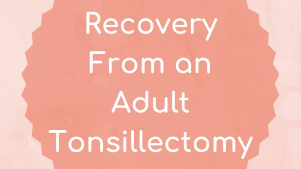 tonsillectomy-for-adults