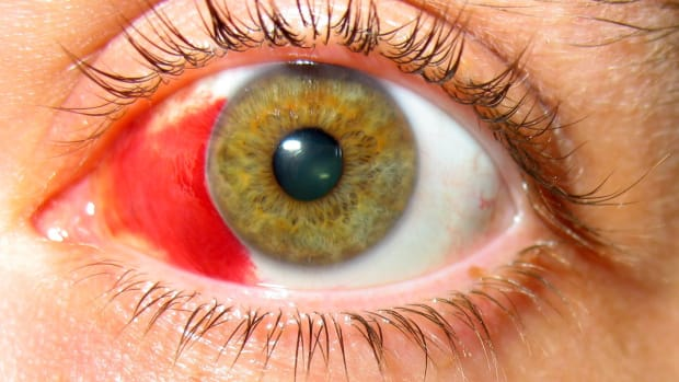 healing-broken-blood-vessels-in-the-eye