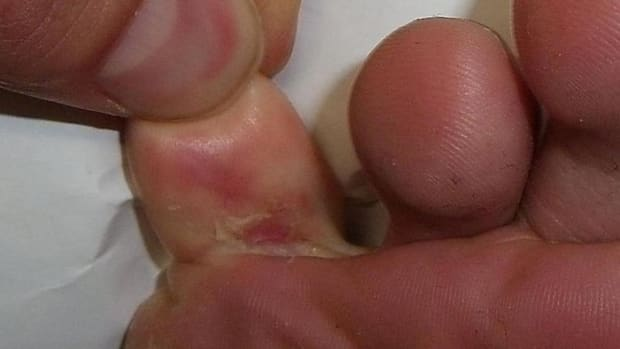 how-to-cure-foot-fungus