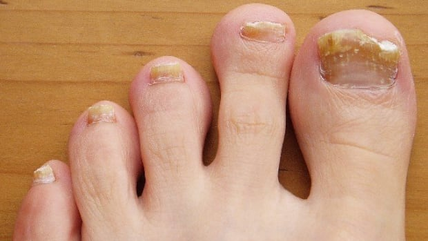 nail-fungal-infection