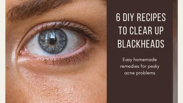 how-to-get-rid-of-blackheads-6-homemade-recipes-to-get-rid-of-blackheads