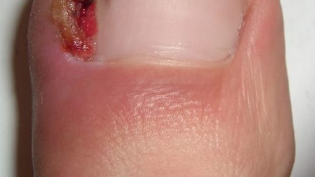 ingrown-toenail-home-treatment-remedies-and-relief-for-ingrown-toenails