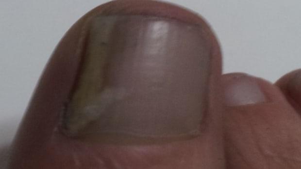 use-a-holistic-remedy-to-get-rid-of-toenail-fungus