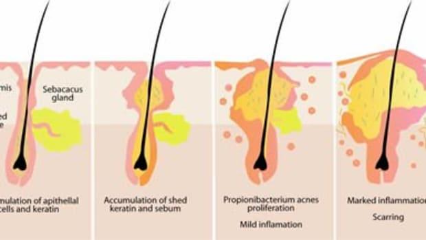 acne-vulgaris-what-is-it