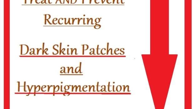 hyperpigmentation-treatmenst-and-prevention