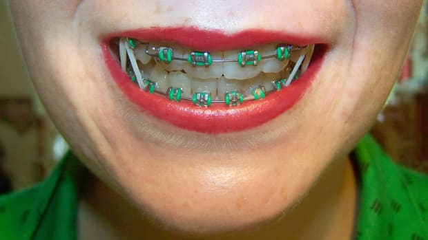 tips-and-advice-for-anyone-with-braces