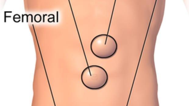 femoral-hernia