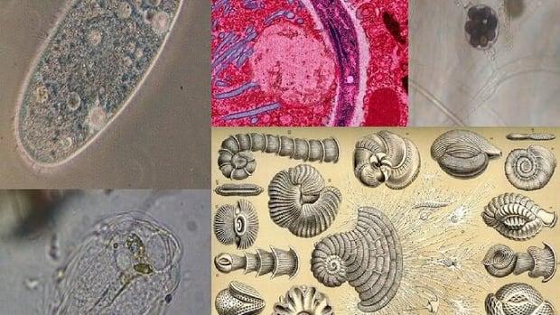 protists-paramecium-amoebas-algae