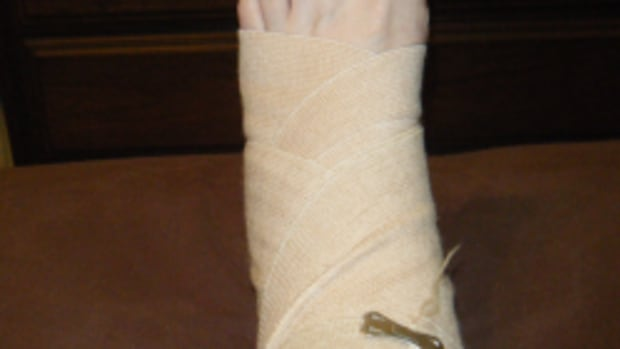 broken-ankle4