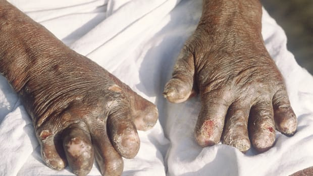 leprosy-bacteria-macrophages-and-nerve-damage