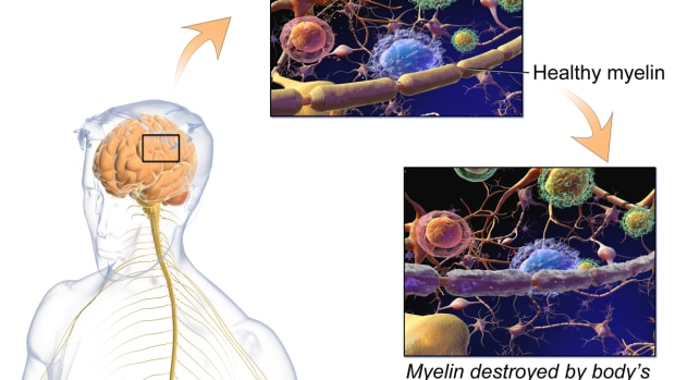studying-multiple-sclerosis-in-males-may-help-both-genders