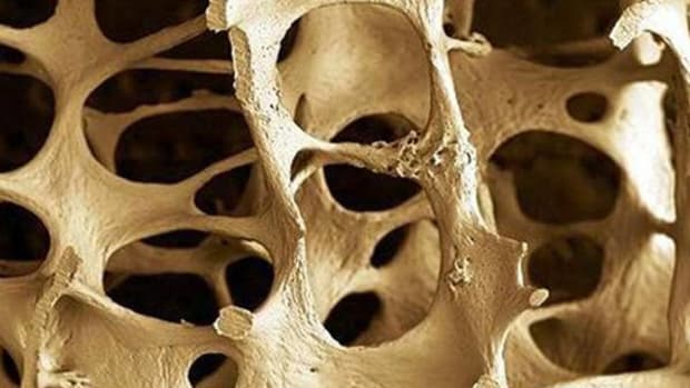 reducing-the-risk-of-osteoporosis-what-you-may-not-know
