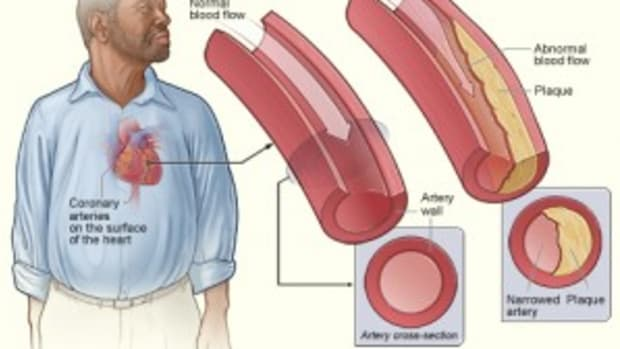 risk-factors-for-coronary-heart-disease